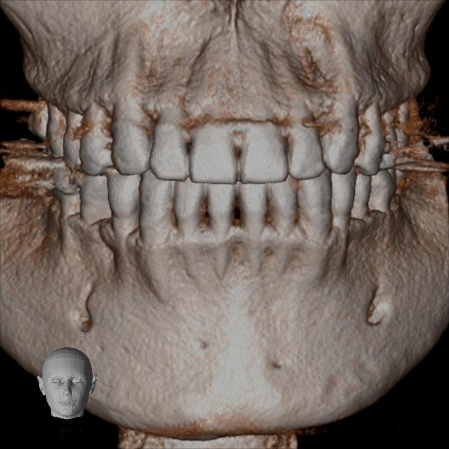 歯科用CTとは?