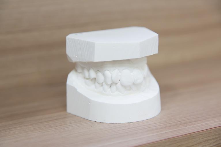 「かみ合わせの調整」で、正しい顎の動きを促し、顎の負担を軽減します
