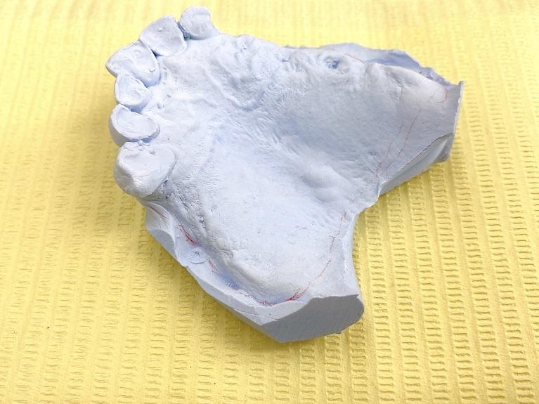 入れ歯の前処置