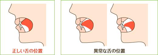 正しい舌の置く場所スポットとは一体どこなのでしょうか。