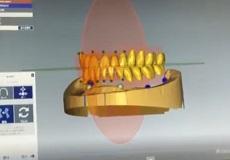 CADCAMを利用した義歯製作についてのソフトウェアを導入