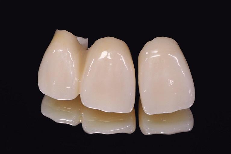 マイクロスコープなどの設備が充実した歯医者