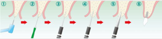 OAMインプラントの手術方法