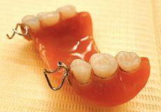 ご家庭での入れ歯(義歯)のお手入れ・ケア方