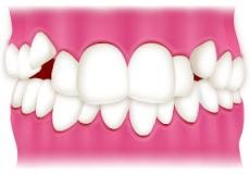 ガチャ歯・歯がガタガタの歯並びを治したい方へ