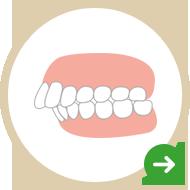 前歯・出っ歯が気になる!