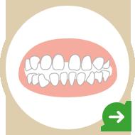 すきっ歯が気になる!