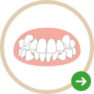 八重歯が気になる!