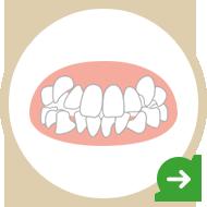 歯のガタガタ(乱ぐい)が気になる!